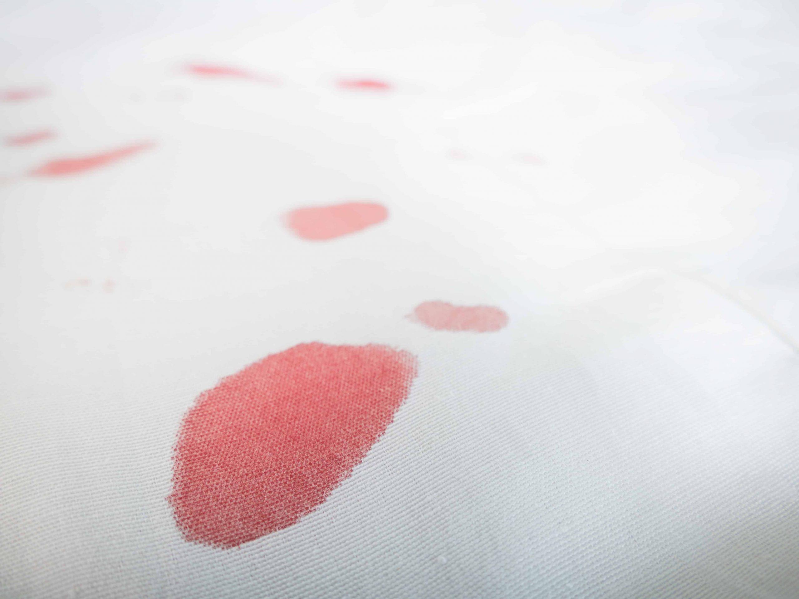 Blutflecken entfernen: Die besten Tipps und Tricks